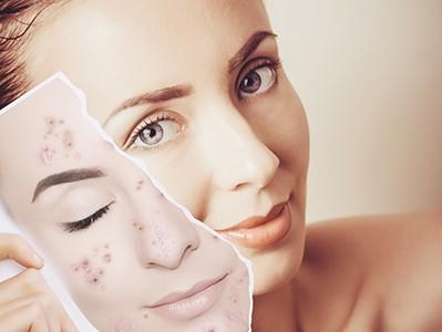 Kozmetické ošetrenie pre aknóznu pleť