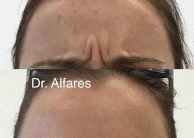 Botulotoxín (Botox)