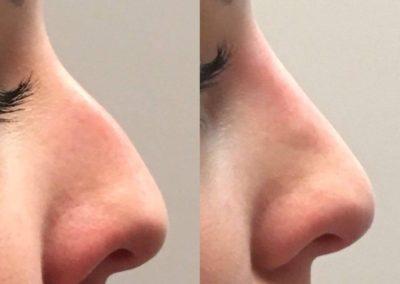 Korekcia nosa