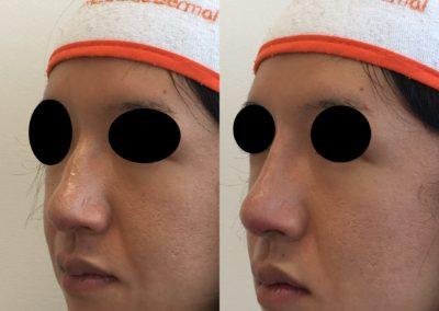 Korekcia nosa kyselinou hyalurónovou