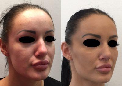 Modelovanie tváre