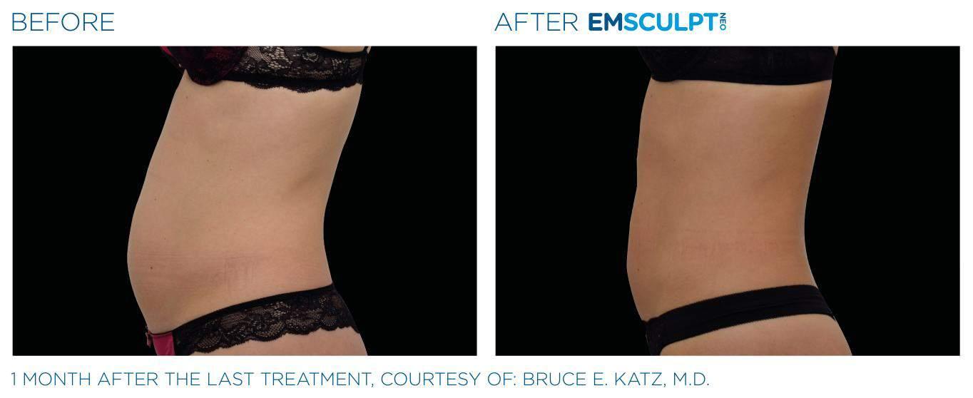 Emsculpt_neo_PIC_Ba-card-female-abdomen-023_EN100